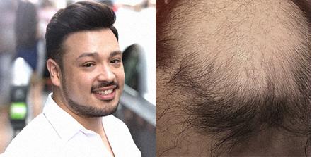 mens hair loss