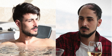 Before and after of Giuseppe with CNC hair prosthesis