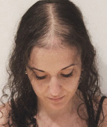 Attractive female before and after of CNC hair prosthesis