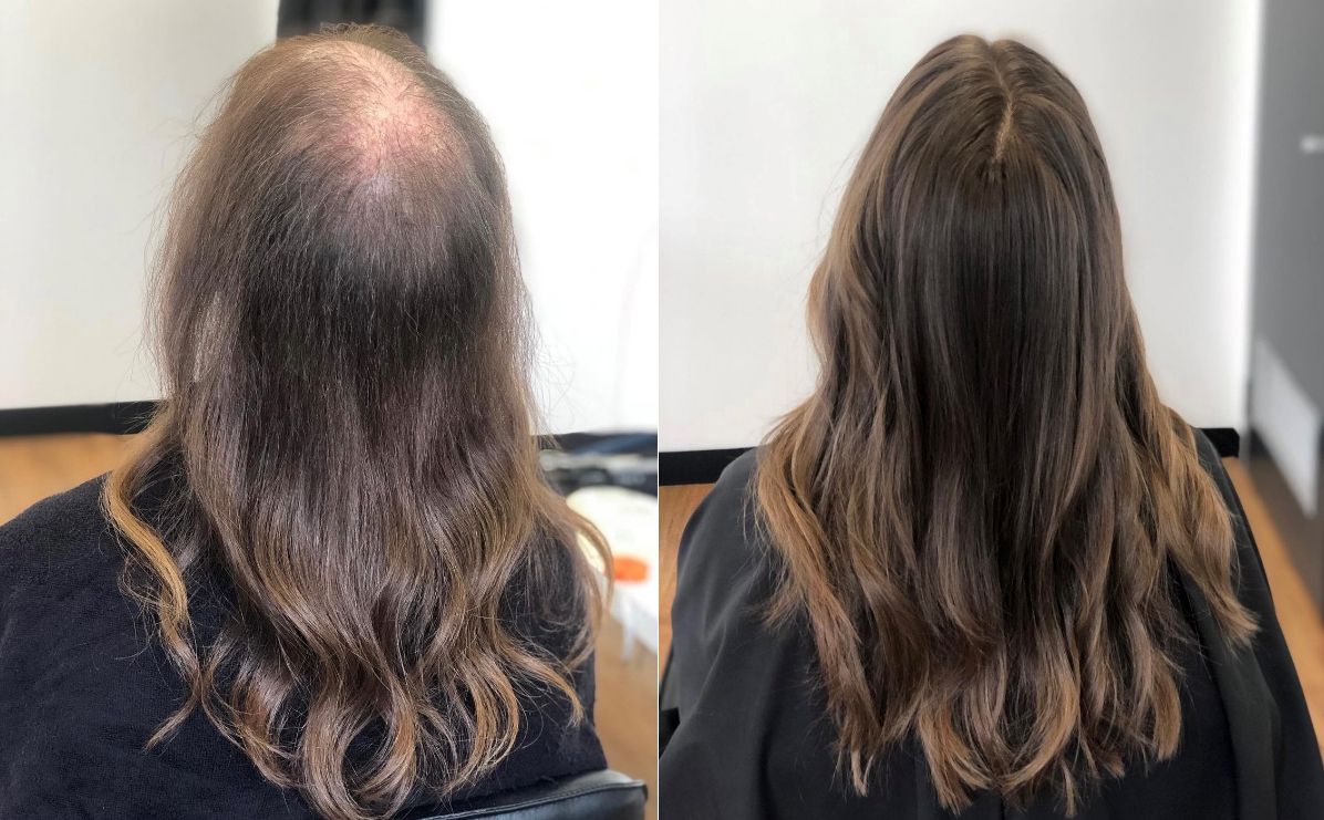 What is the best treatment for female hair loss?